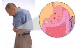 cara mengobati maag kronis